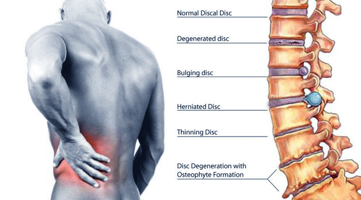 herniated disc chiropractor